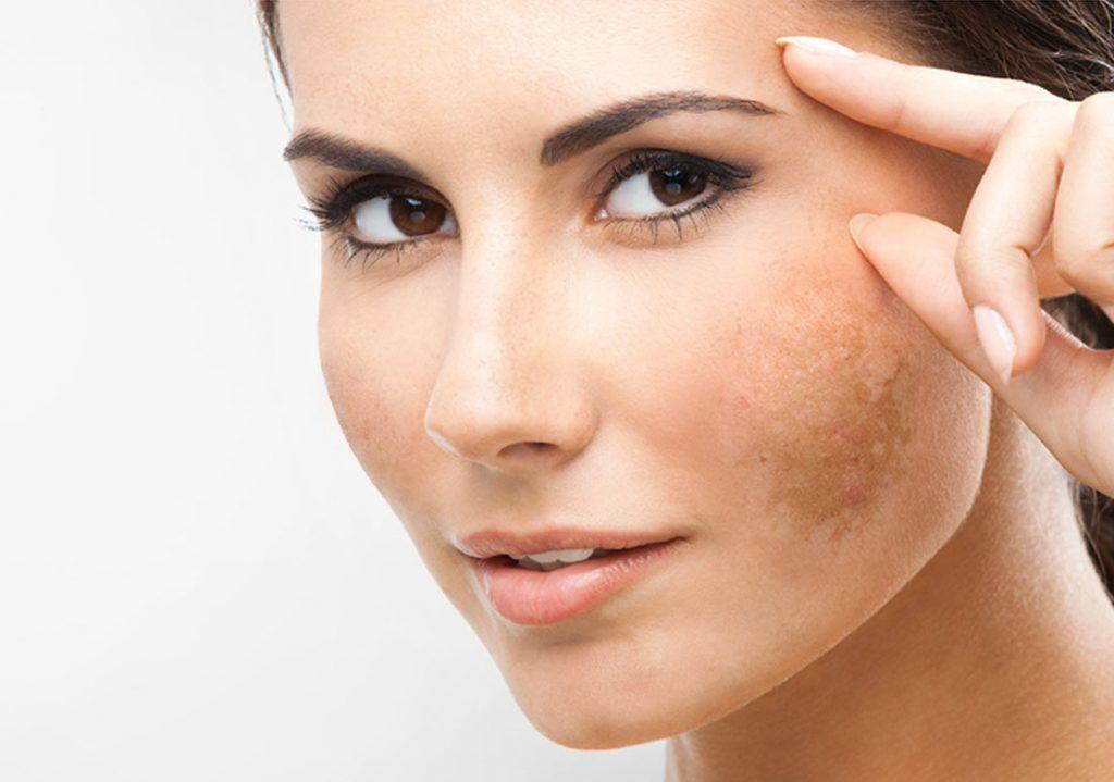 Beauty Clean Melasma